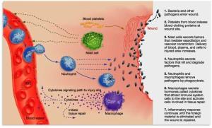 inflammation01a